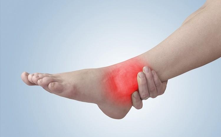 Лечение отека ноги после гематомы