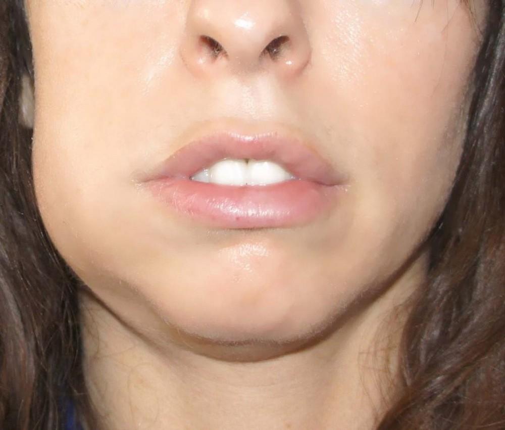 Когда пройдет отек после имплантации зубов