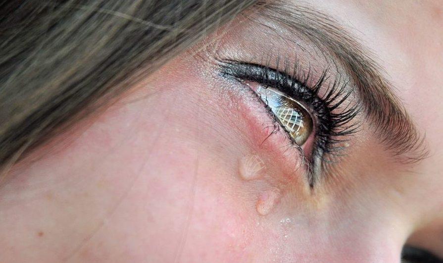 Как убрать опухшие глаза после слез