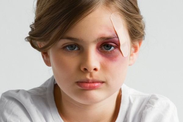 Как уменьшить отек после удара в глаз