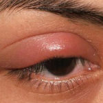 Почему у ребенка опух глаз. Что делать, если у ребенка покраснело и опухло верхнее или нижнее веко, припух или отек глаз