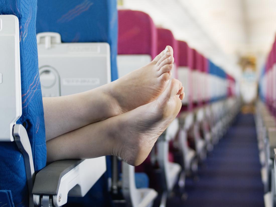 Что делать если отекли ноги после самолета
