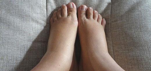 Отек ног в сидячем положении thumbnail