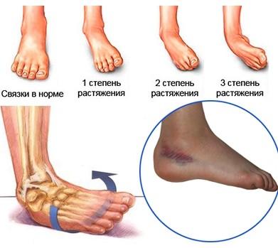 Подвернул ногу в щиколотке: чем лечить в домашних условиях