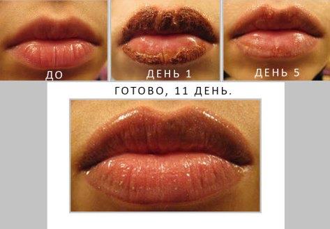 Что делать если распухла губа