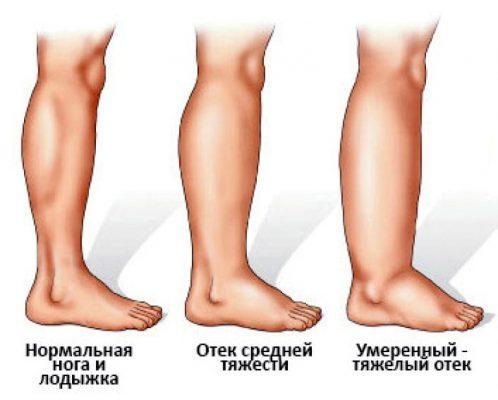 Что делать если отекли ноги после долгой поездки