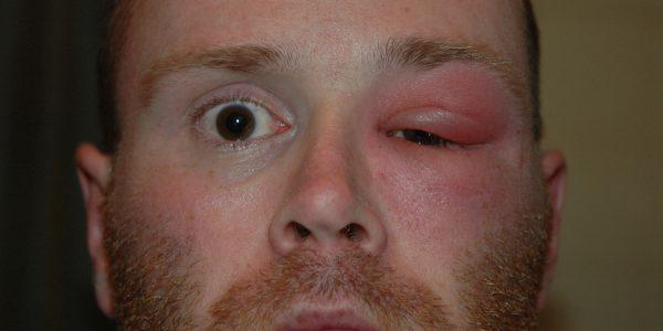 Опухает глаз причины лечение thumbnail