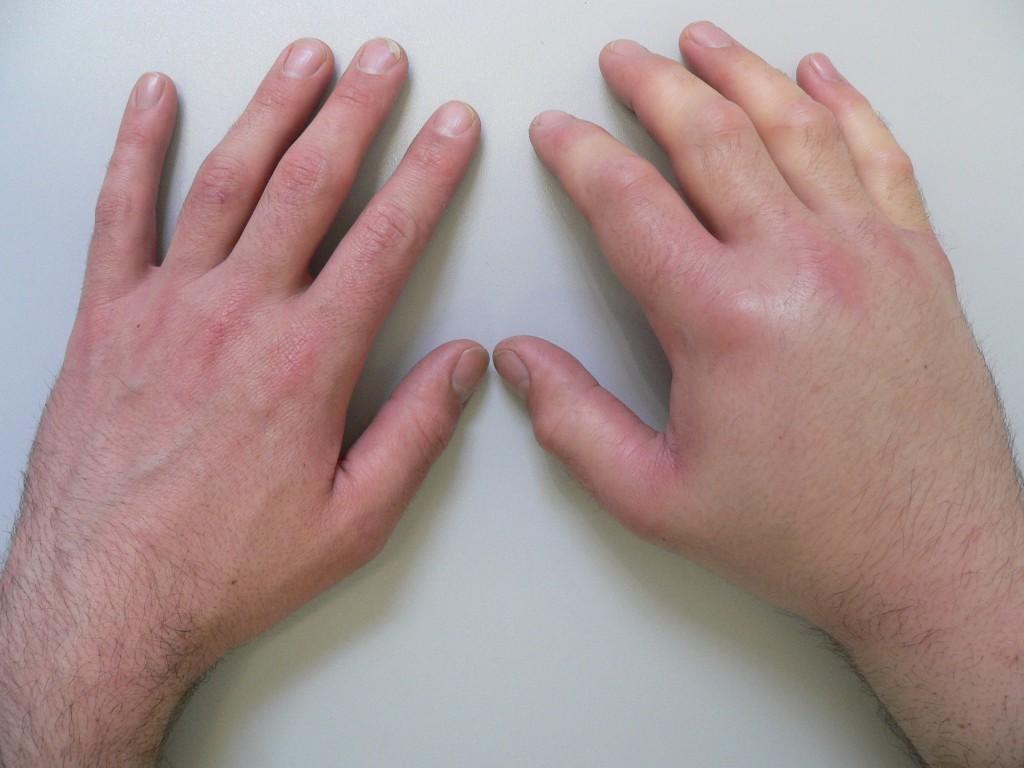 Как сделать чтобы опухла рука специально