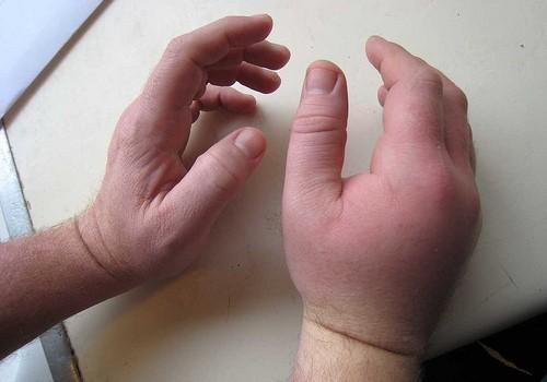 Как снять опухоль руки после ушиба в домашних условиях