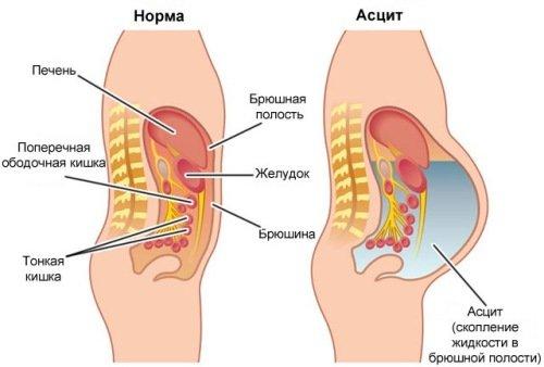 Скопление жидкости в брюшной полости также называется асцитом