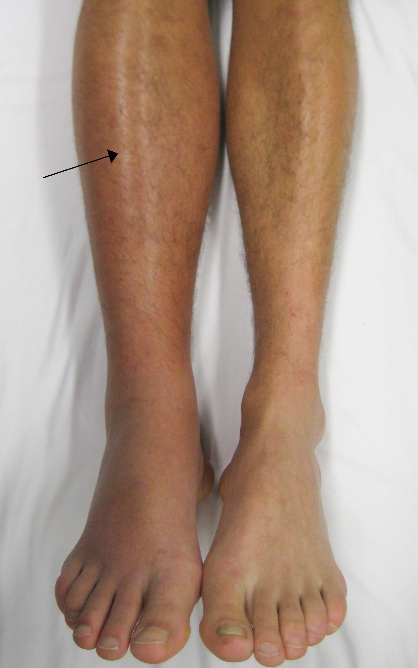 Левая нога больше правой ноги - тромбоз вен