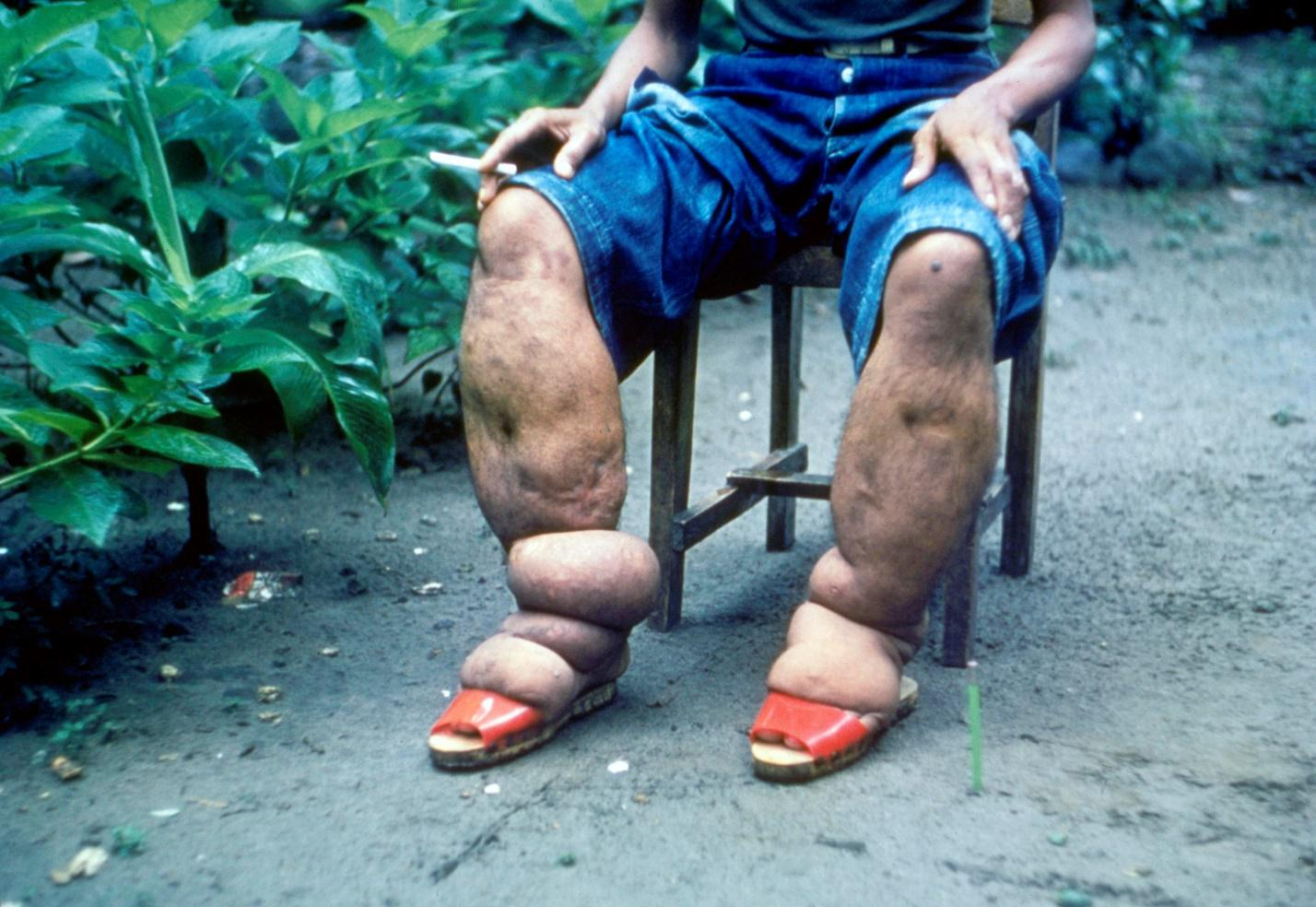 Лимфедема - почему правая нога больше левой