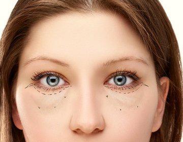 Отеки под глазами – симптом