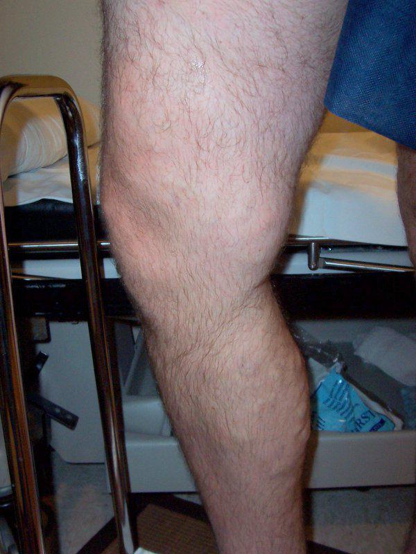 Расширение вен - Одна нога больше другой