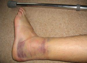 Что делать, если вы подвернули ногу и опухла щиколотка?